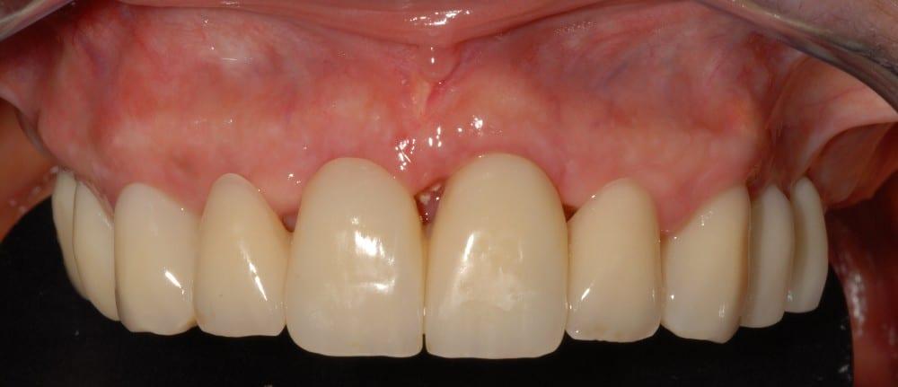 parodontite cura il provvisorio dopo gli impianti