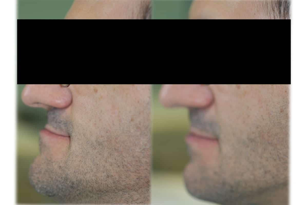 Nella foto si nota il miglioramento del profilo estetico del paziente.
