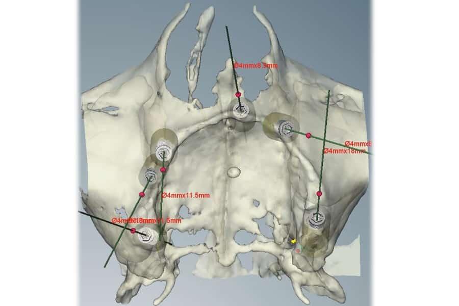 Poco osso sull'arcata superiore: elaborazione 3D dalla TAC.