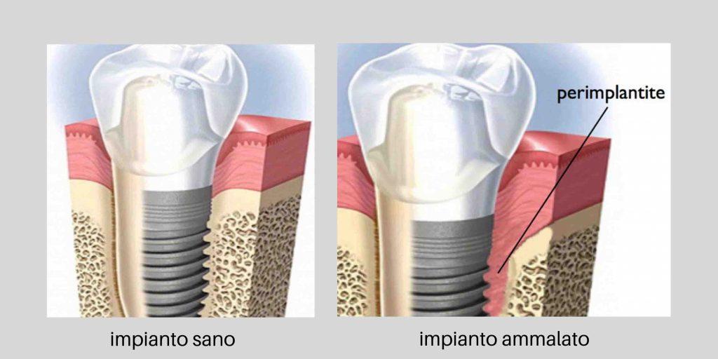 infezione impianto dentale