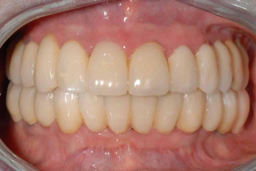 Implantologia dentale. Riabilitazione definitiva in zirconio-ceramica dell'arcata superiore dopo 2 anni dall'intervento con protocollo OnlyOne®.