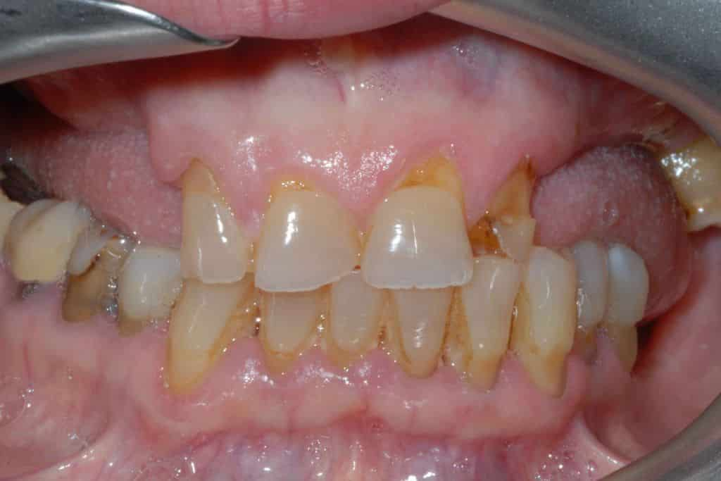 Implantologia dentale. La situazione iniziale: piorrea e collasso del morso.