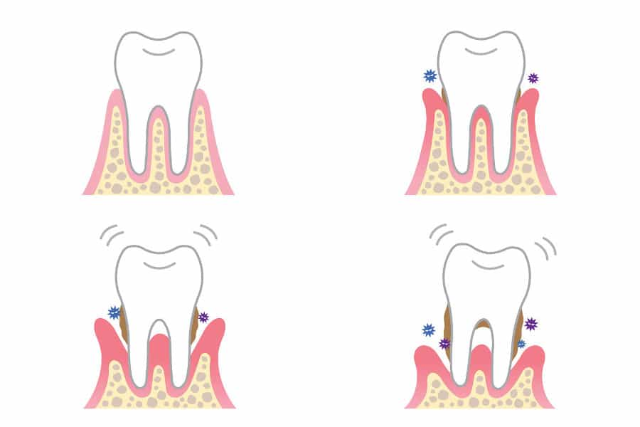 disegno denti