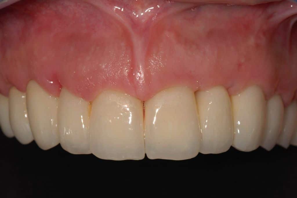 Gengiva naturale. Denti dopo l'intervento