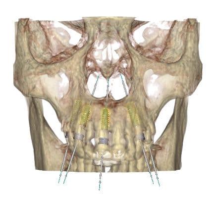 Implantologia computer guidata: una pianificazione 3D dell'arcata superiore.