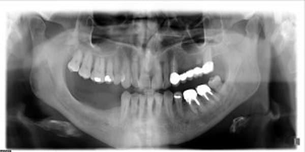 La panoramica in paziente prima dell%E2%80%99inserimento degli impianti dentali. - Atrofia ossea e impianto dentale