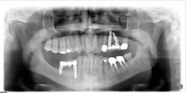 Panoramica dopo l%E2%80%99inserimento degli impianti dentali - Atrofia ossea e impianto dentale