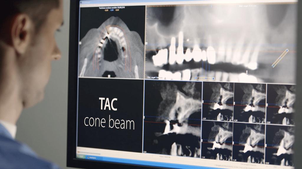 tac cone beam