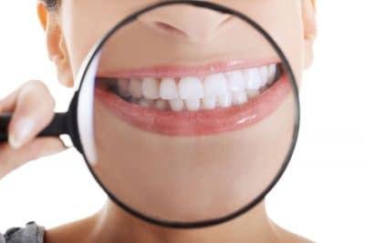 lente denti