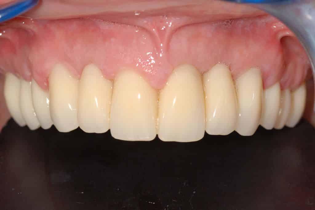Carico immediato OnlyOne® riabilitazione dopo 6 mesi 1024x683 - Caso Clinico di Implantologia in paziente con parodontite