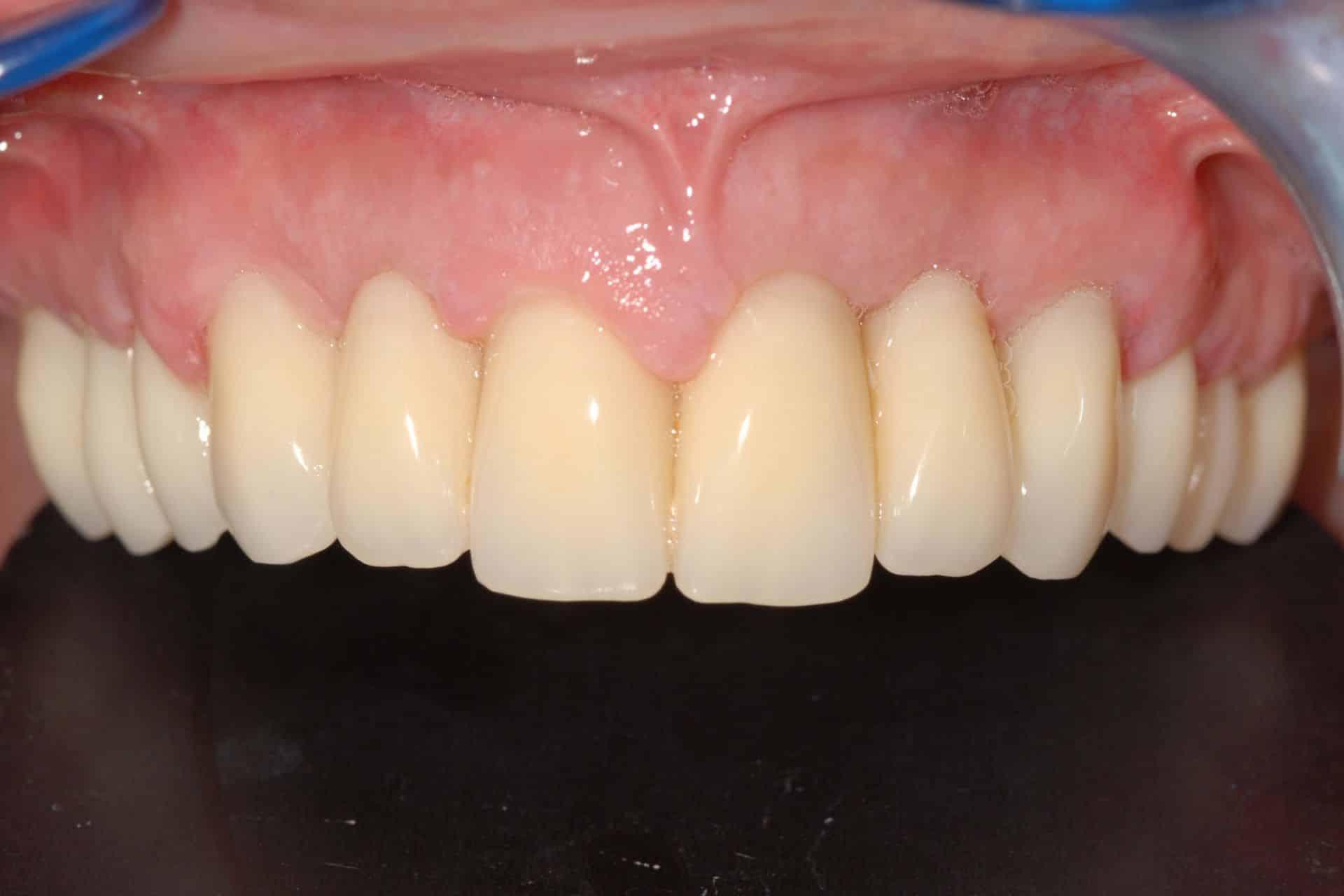 Implantologia a carico immediato con parodontite