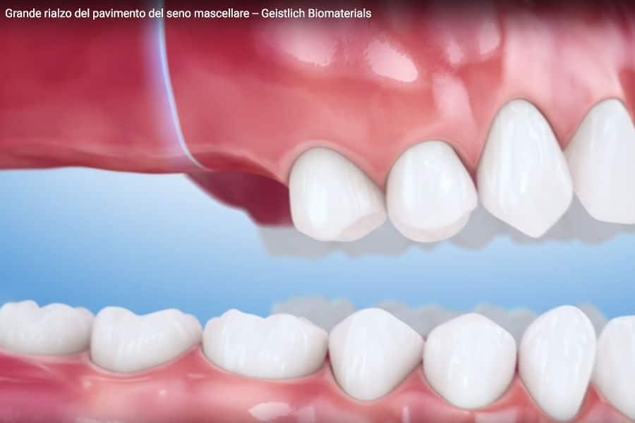 zona molare