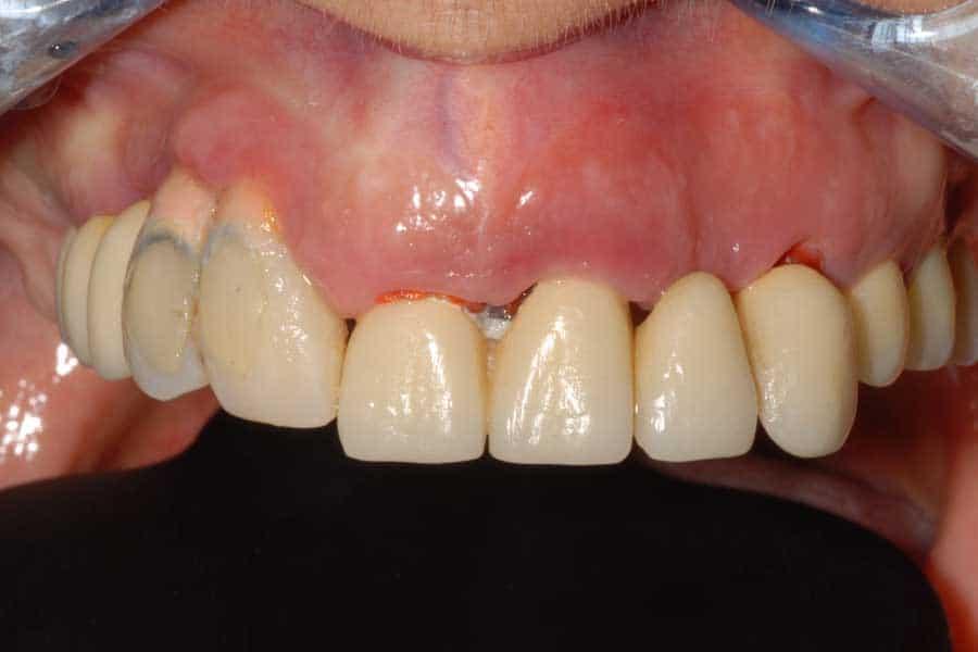 implantologia dentale situazione iniziale