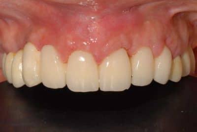 implantologia dentale 14 giorni dall'intervento