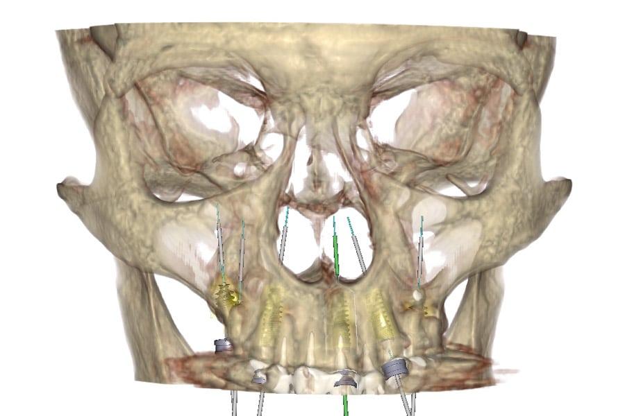 implantologia carico immediato con poco osso