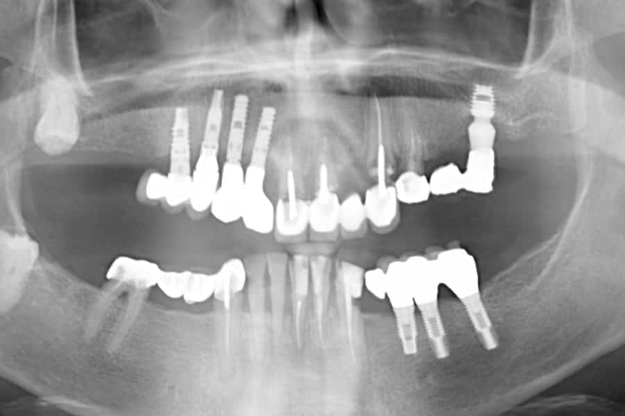 implantologia dentale iniziale