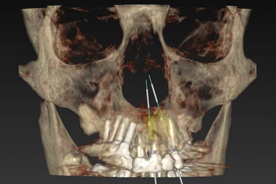 implantologia dentale pianificazione