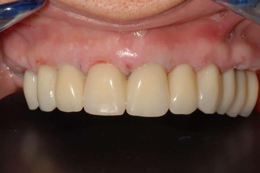 implantologia dentale Provvisorio
