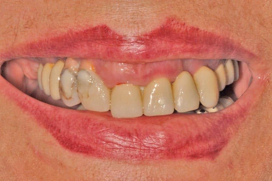 implantologia dentale sorriso