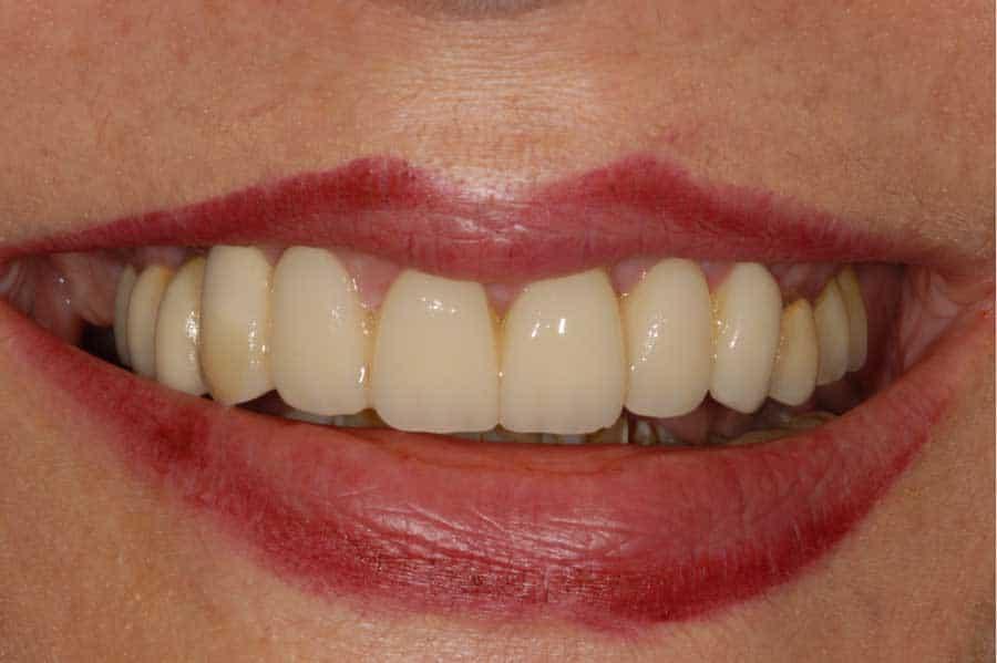 implantologia dentale sorriso della paziente