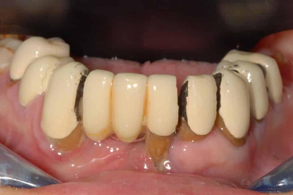 parodontite e recessioni situazione iniziale 1024x683 - Parodontite grave arcata inferiore e impianti dentali