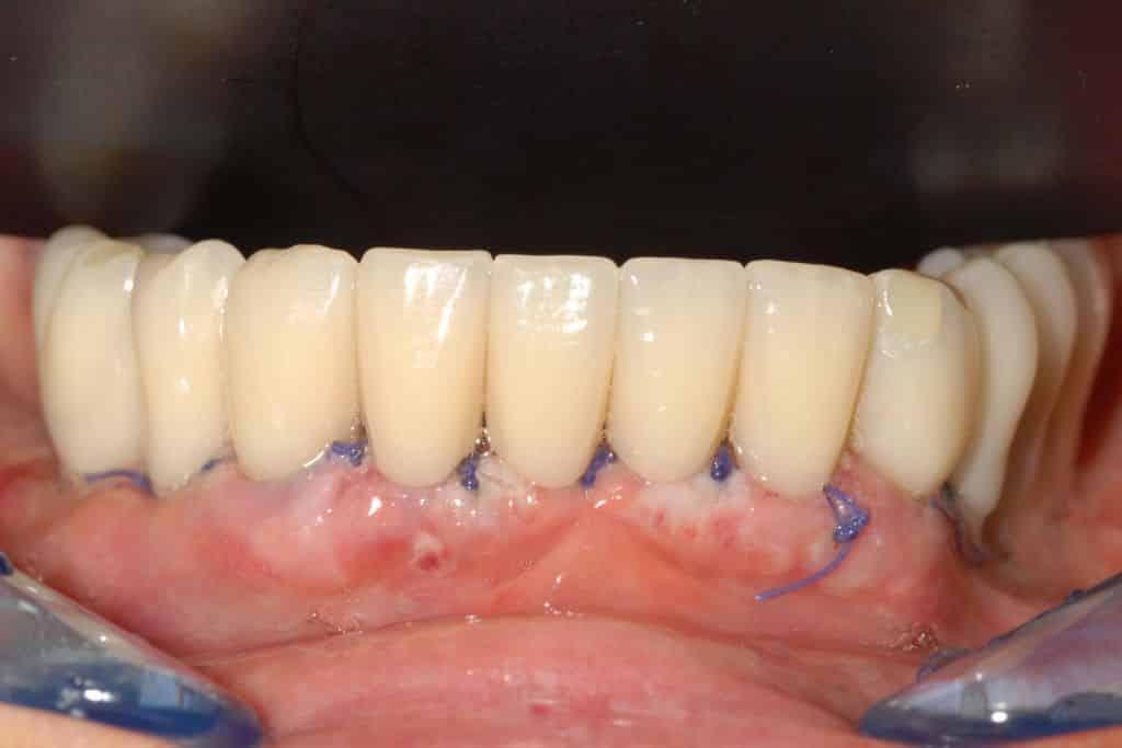 provvisorio dopo 24 ore 1024x683 - Parodontite grave arcata inferiore e impianti dentali