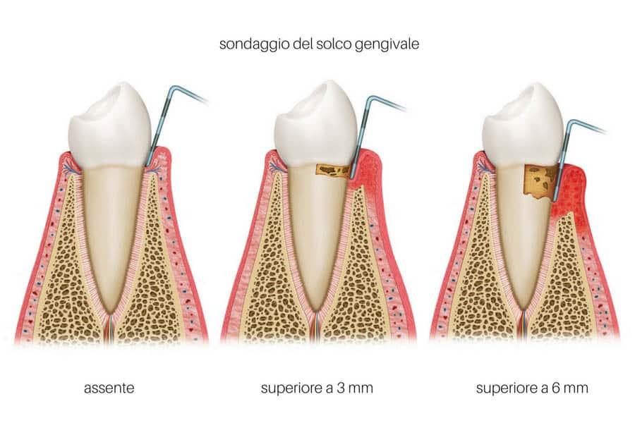 parodontite e placca batterica sondaggio parodontale