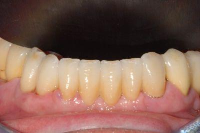Parodontite protesi finale