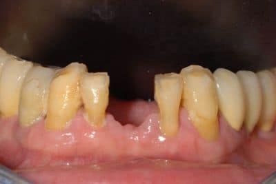parodontite su arcata inferiore