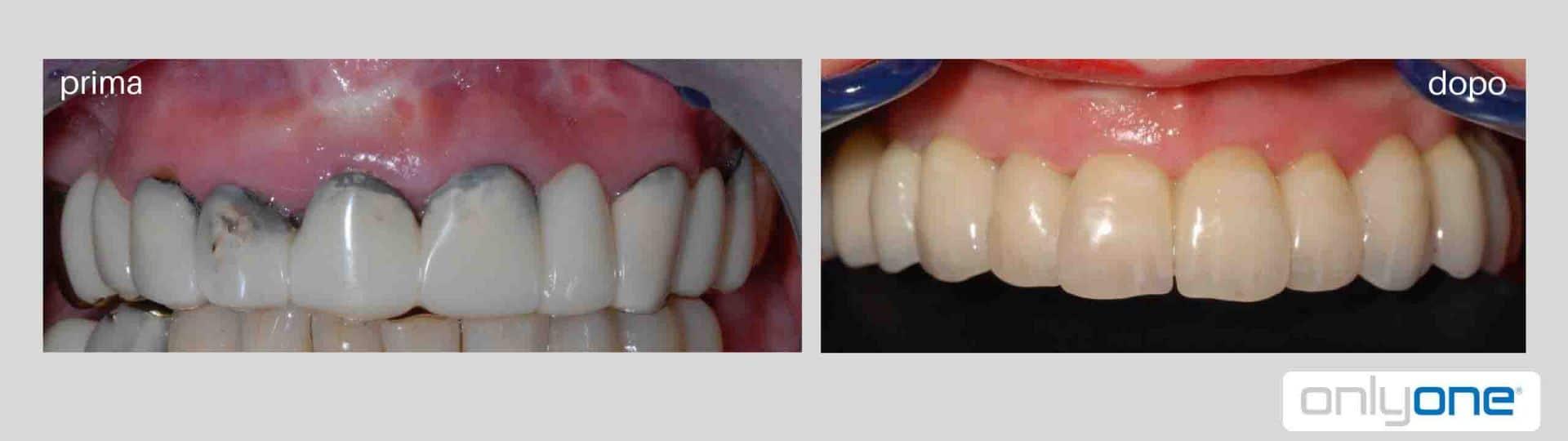 implantologia a carico immediato prima e dopo