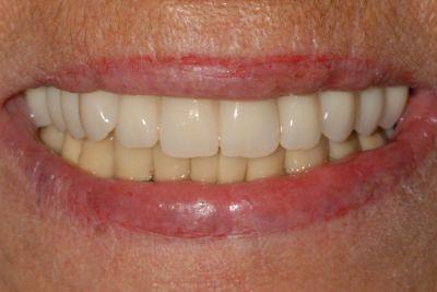implantologia a carico immediato con parodontite il sorriso finale