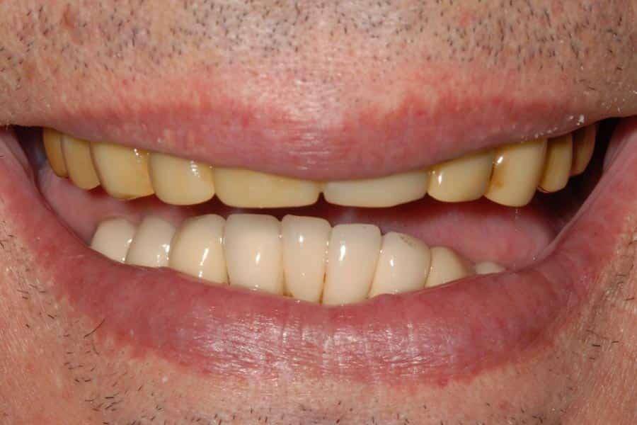 implantologia a carico immediato Il sorriso iniziale