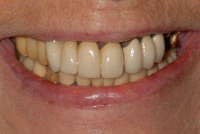 implantologia a carico immediato con parodontite sorriso prima