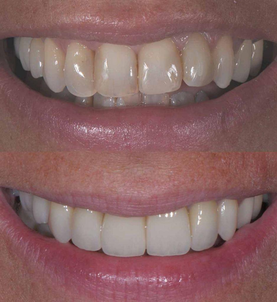 faccette dentali: sorriso prima e dopo