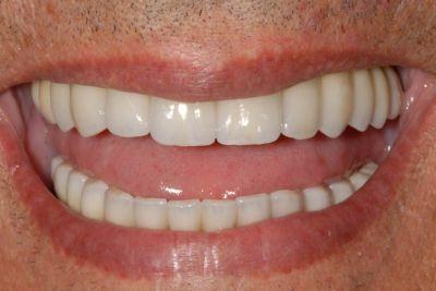 Implantologia a carico immediato, sorriso dopo 1 anno