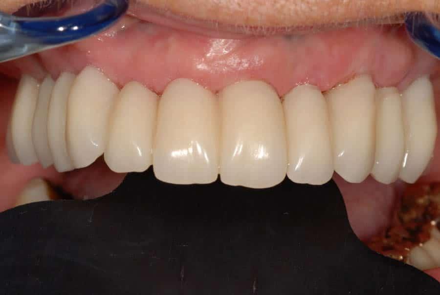 implantologia a carico immediato con parodontite il provvisorio 24 ore dopo