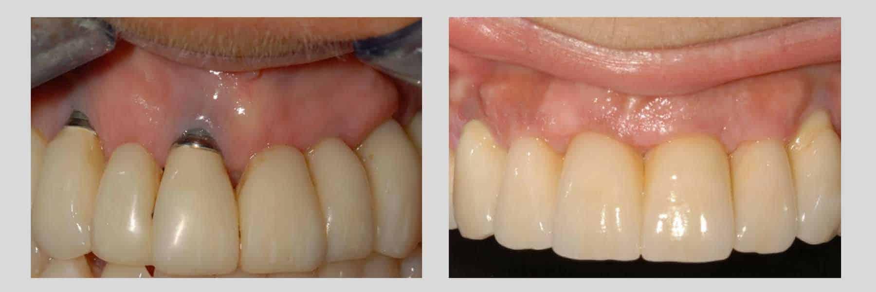 innesto gengivale su impianto dentale