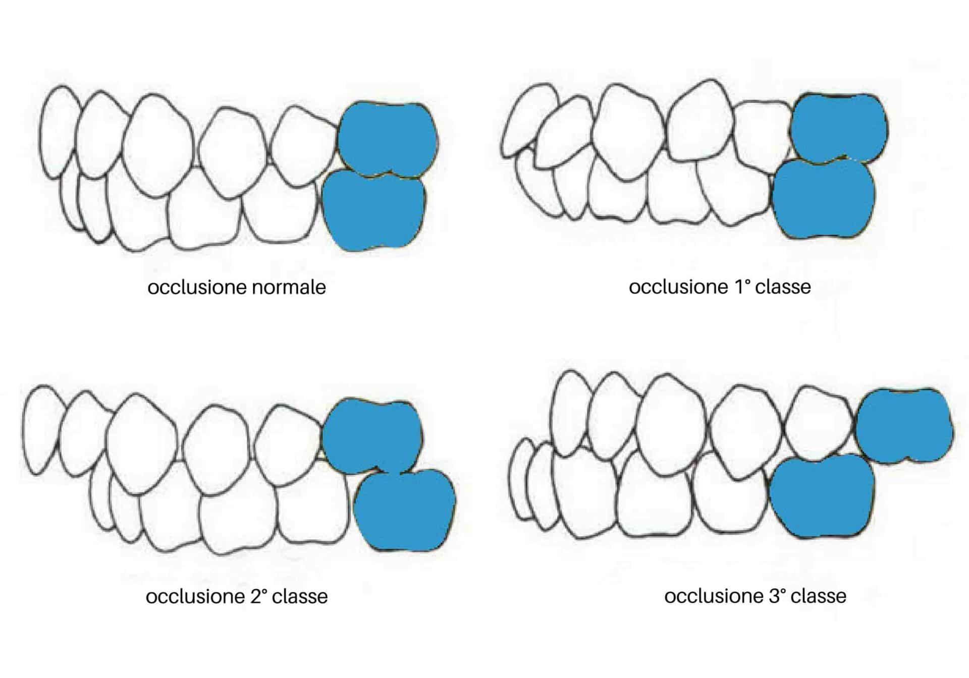 classificazione occlusione denti da latte