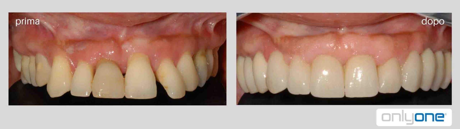 impianti dentali arcata superiore prima e dopo