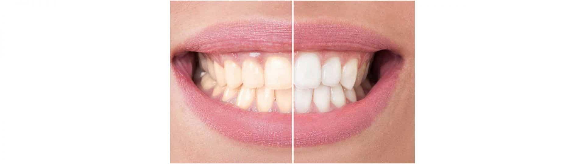 Sbiancamento dentale con laser prima e dopo