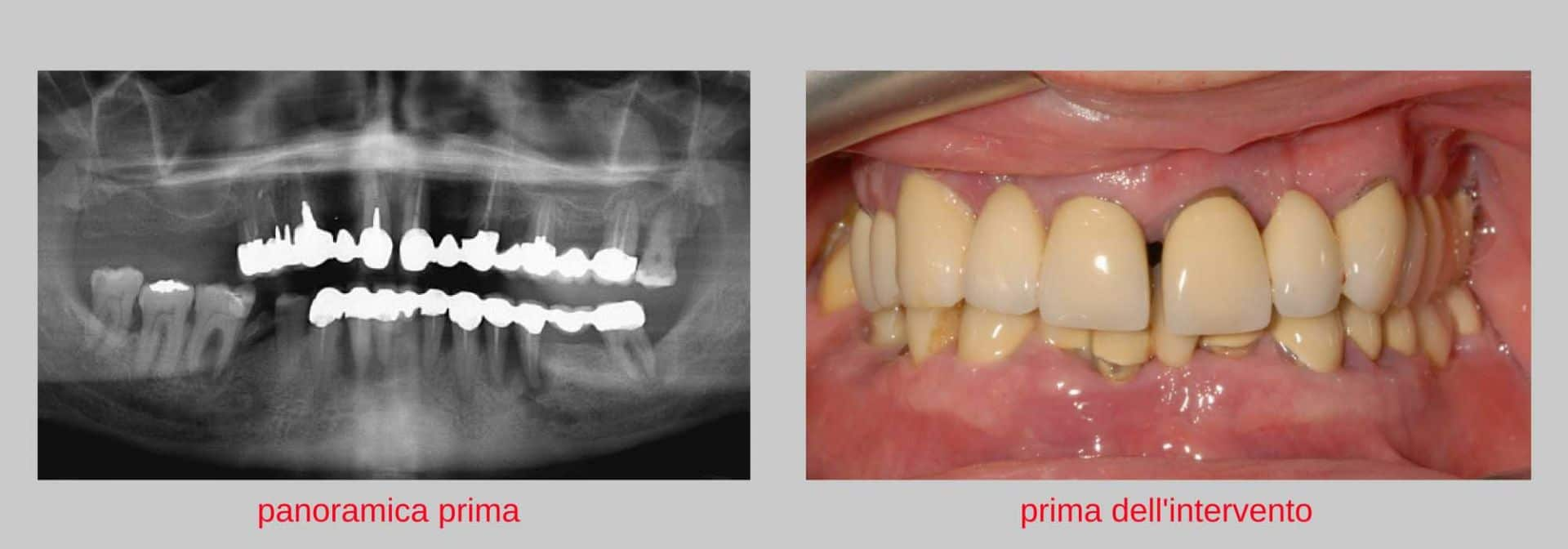caso clinico implantologia estetica prima