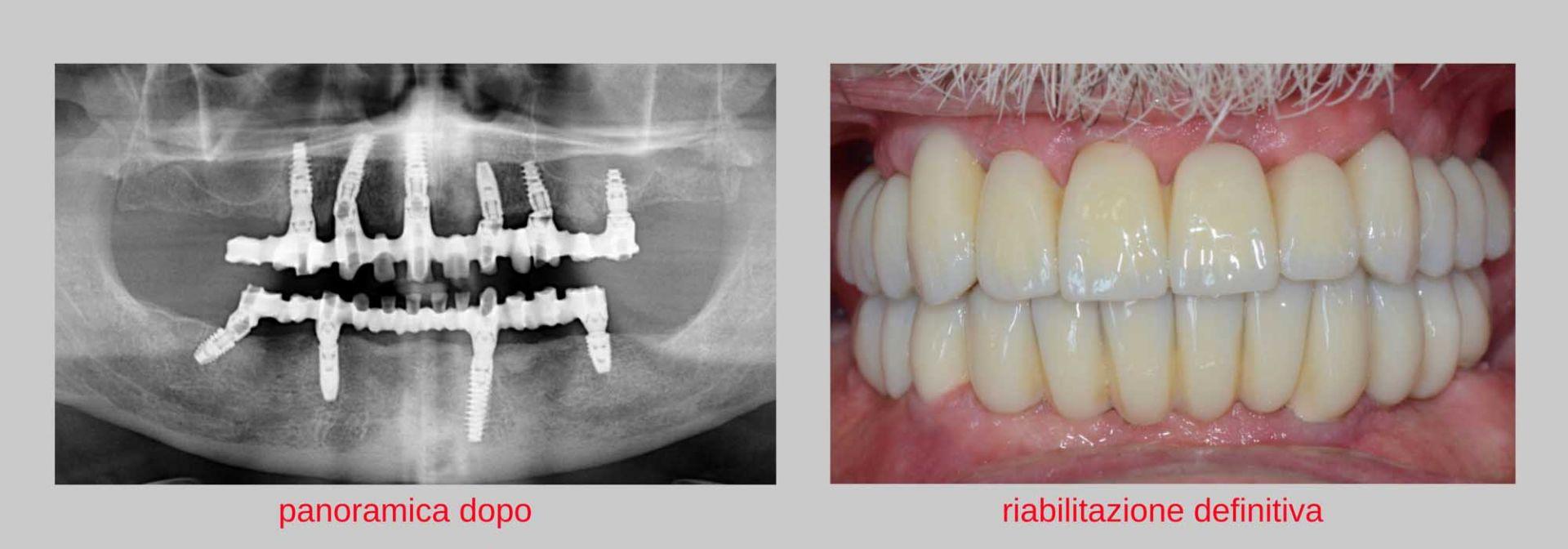 caso clinico implantologia estetica dopo