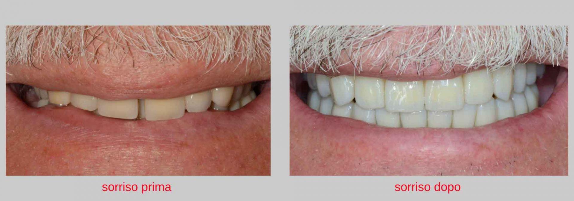 caso clinico implantologia estetica il sorriso