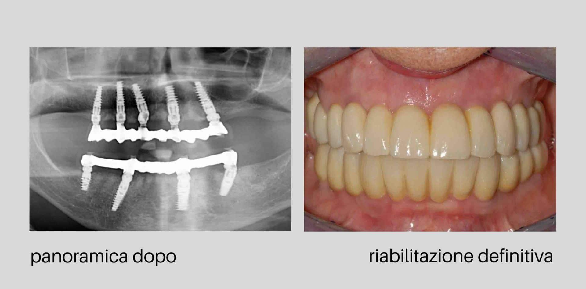 caso clinico dopo - Caso clinico 94: parodontite grave e impianti