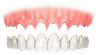 only1 - Implantologia senza falsa gengiva