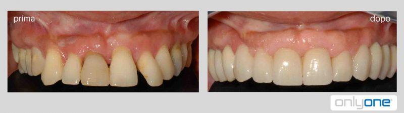 prima e dopo con protesi in zirconio