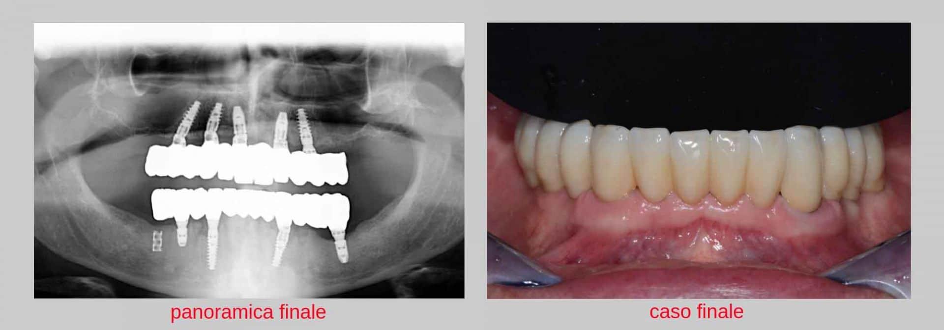 giovanni paziente con parodontite dopo