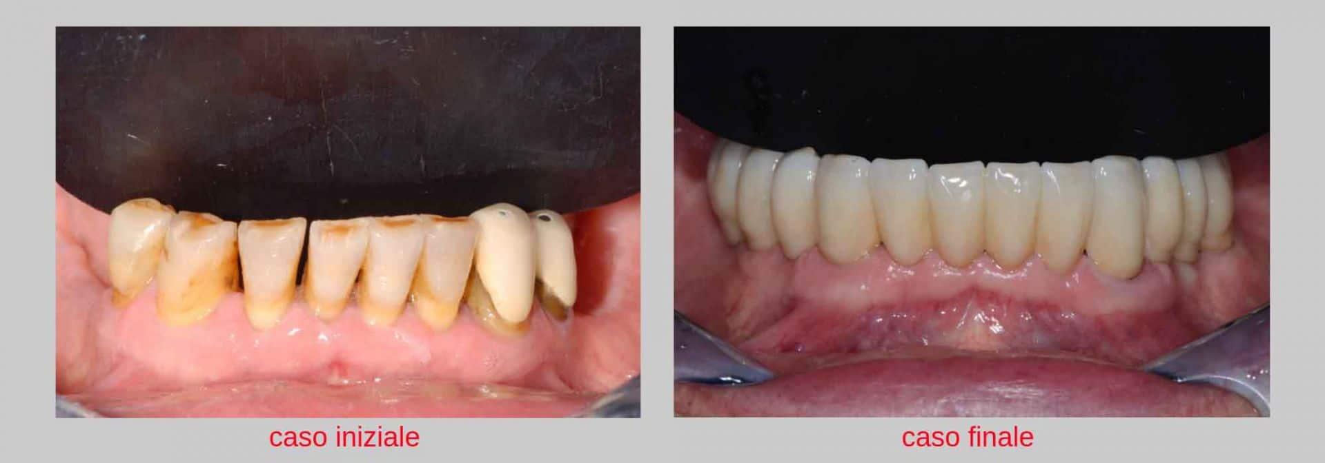 giovanni paziente con parodontite prima e dopo