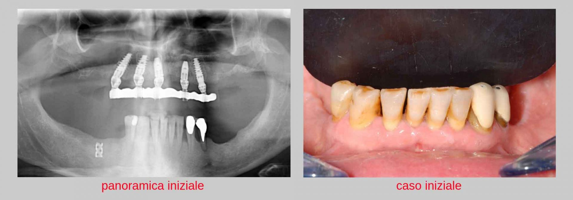 giovanni paziente con parodontite prima