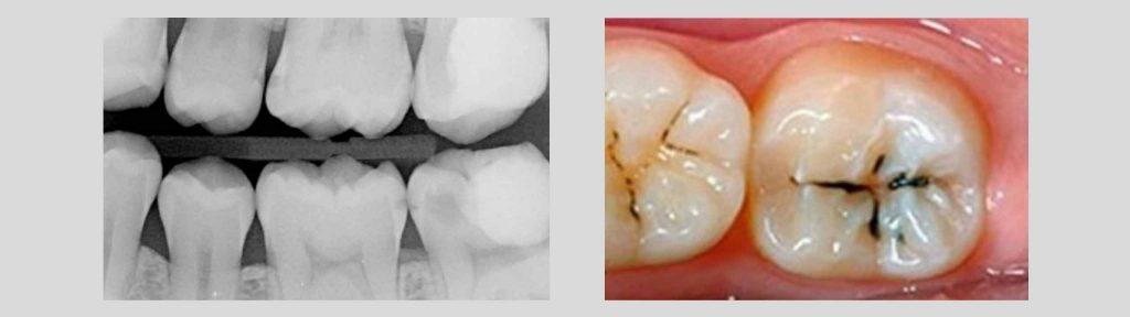 visita odontoiatrica 1024x288 - Sintomi Carie e altre patologie